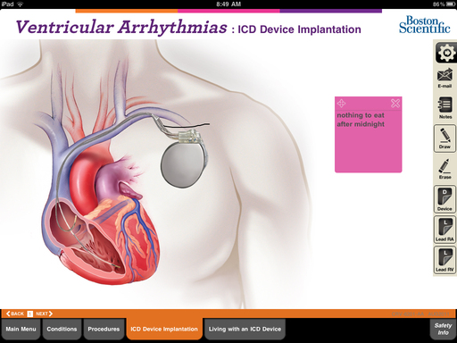 Physicians can overlay cardiac devices, such as pacemakers, onto anatomical illustrations and add notes for emphasis
