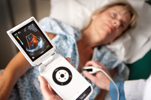 Vscan Pocket Ultrasound