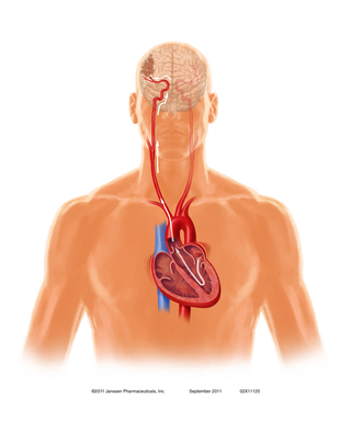 Heart/Head Path: A clot formed as a result of atrial fibrillation can leave the heart and follow a direct path to the brain's arteries, causing an embolic stroke.