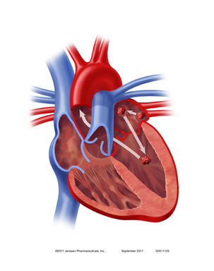 Clot in the Heart: When the heart's rhythm is disrupted by atrial fibrillation, a clot can form in the left atrium and travel to the brain, causing an embolic stroke.