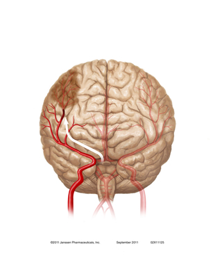 An Embolic Stroke: A blood clot formed in the heart can travel to the brain and lodge in one of the brain's arteries, causing an embolic stroke.