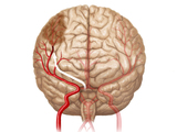 Blood-clot-cerebral-vessel-color-sm