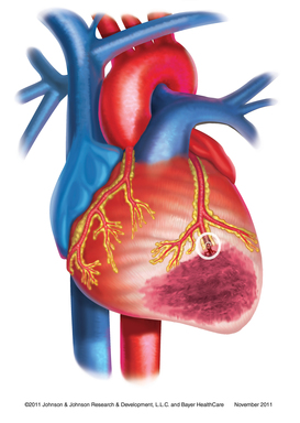 Acute coronary syndrome occurs when a clot develops in a coronary artery, reducing blood flow to the heart. This disruption may cause severe chest pain signifying that a heart attack may soon occur.