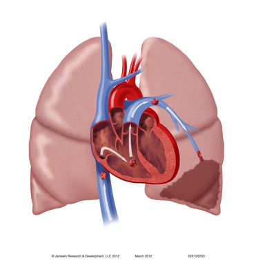 Pulmonary Embolism: If a blood clot travels to the lungs, it can block the flow of blood and cause problems, including shortness of breath, rapid breathing and chest pain, and may result in death.