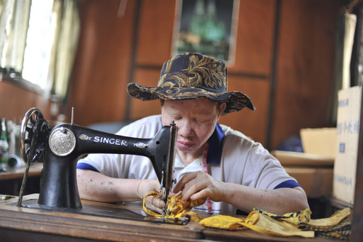 A woman with albinism works indoors at the Regional Dermatology Training Center where thousands of sun-protective hats were recently distributed to local healthcare workers