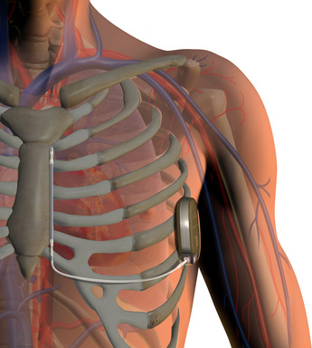 S-ICD System implant in body