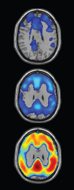 PET scans detect increasing amounts of amyloid (in blue) in the brains of healthy individuals who are at risk for Alzheimer's (top two images). The bottom image show deposits of amyloid (in orange and red), in the brain of a typical Alzheimer's patient.