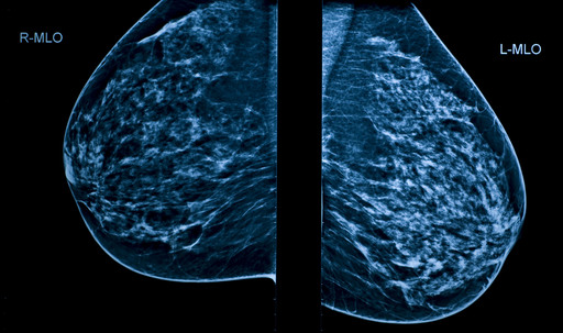 Mammogram (X-ray) of breasts