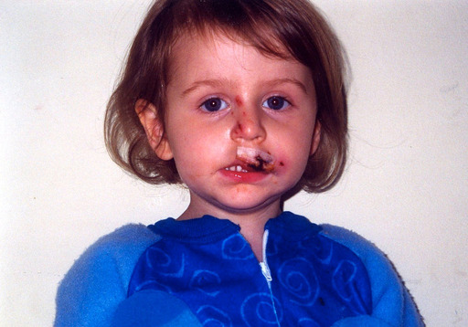 Alex Ramsey was two years old when a family members' dog attacked her. Children are frequent victims and make up more than 50 percent of all dog bites.