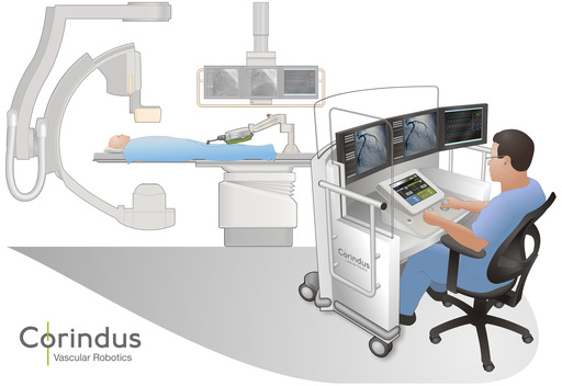 The CorPath 200 System is the first and only robotic-assisted system to allow for controlled placement of coronary guidewires and stent/balloon catheters from an interventional cockpit.