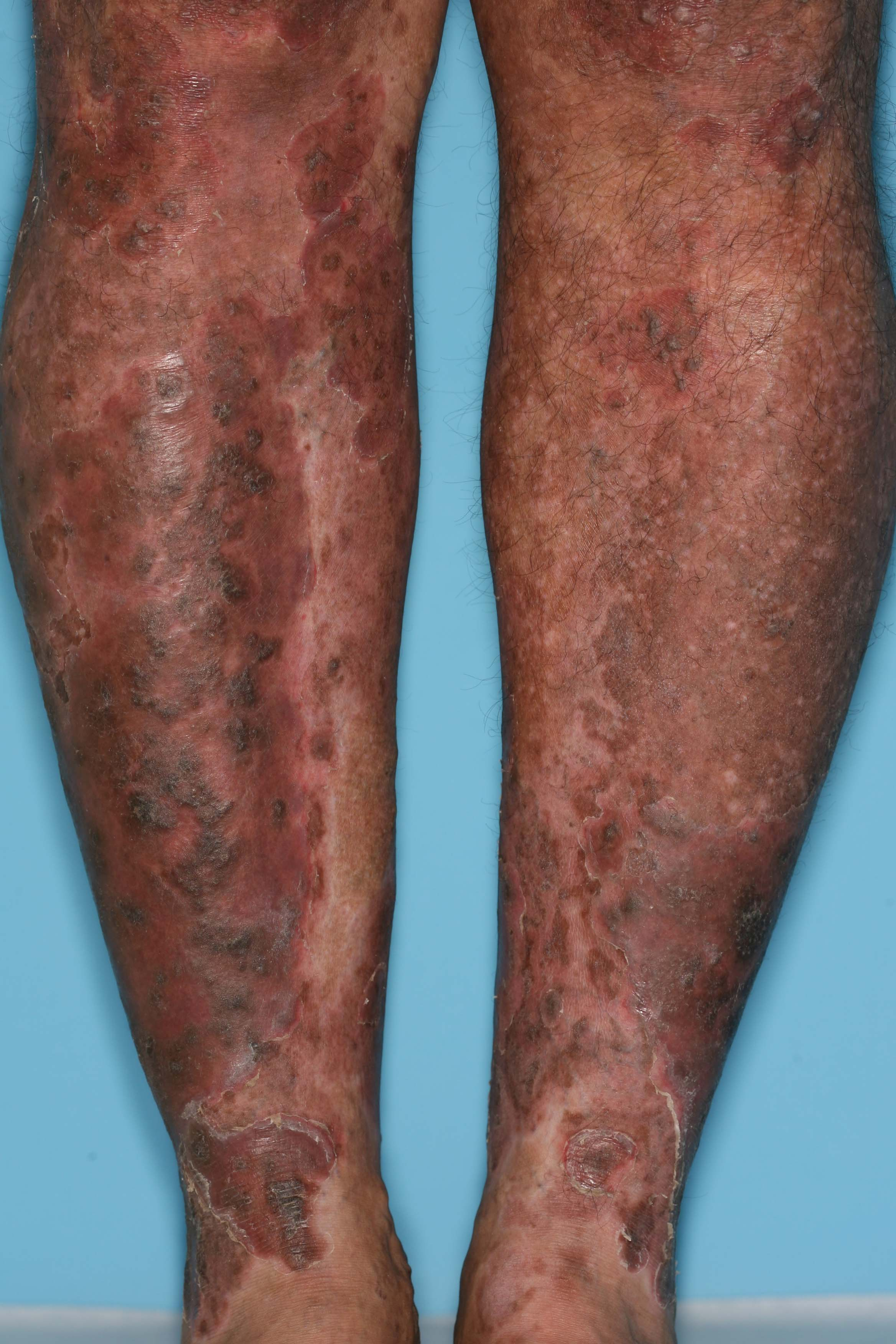 Pin Images-of-plaque-psoriasis-on-the-legs on Pinterest