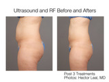 Ultrasound-before-after-sm