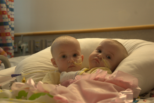 Formerly Conjoined Twins Allison and Amelia Tucker