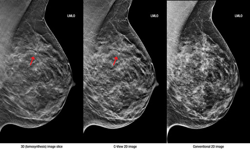 The images above show a cancer (invasive ductal carcinoma.) C-View 2D images may be used in place of  traditional 2D images, eliminating the need for a 		separate 2D exposure in a 3D mammography exam