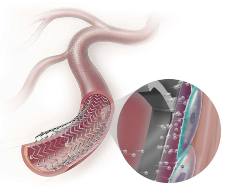 Cook Medical's Zilver PTX stent is the first drug-eluting stent approved to treat peripheral artery disease (PAD) in an artery in the thigh - the most common artery for PAD blockages.