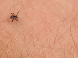 61330-ixodes-scapularis-adult-female-skin-sm