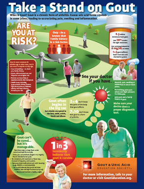 This infographic offers information and statistics about gout, a painful form of arthritis.