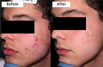 Figure 2. Before and After - Clearance of a Severe Acne Patient