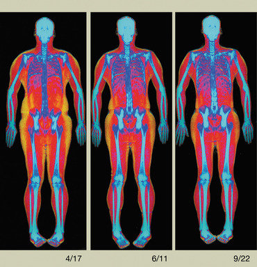 Horizon's Advanced Body Composition Assessment capability enables healthcare professionals to identify and track changes in the distribution of fat, lean tissue and bone in their management of obesity.