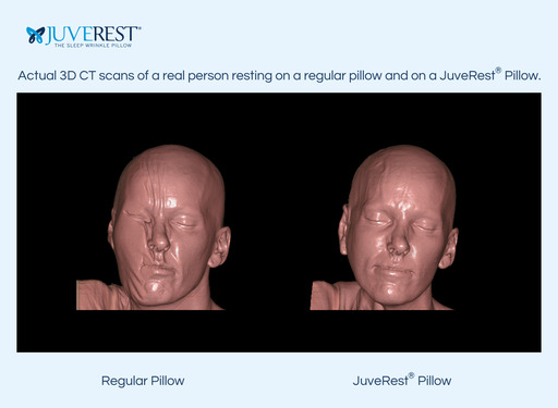 Actual 3D CT scans of a real person resting on a traditional pillow compared to a JuveRest pillow shows dramatic reduction in facial compression and distortion during side sleeping on JuveRest.