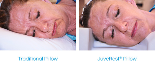 Sleeping on a traditional pillow (left) compresses delicate facial skin, creating and reinforcing wrinkles.  The JuveRest pillow (right) allows comfortable back and side sleep with minimal facial contact, helping to prevent sleep wrinkles.