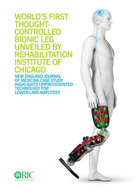 World's First Thought-Controlled Bionic Leg Unveiled by Rehabilitation Institute of Chicago: New England Journal of Medicine Case Study Highlights Unprecedented Technology for Lower-Limb Amputees