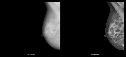 Mammography image before and after processing with GOPView Mammo 2.