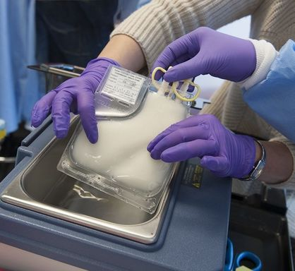 University of Pennsylvania researchers developed a new cancer treatment that engineers cancer patients' own cells to attack their tumors. A bag of reprogramed cells is shown here, ready for infusion.