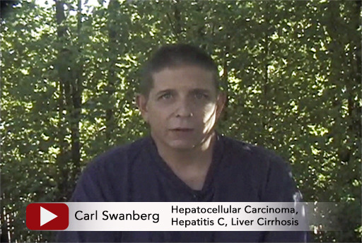 Carl Swanberg shares his remarkable results from using Issels Immunobiologic core treatment for his Hepatocellular Carcinoma, Hepatitis C, Liver Cirrhosis