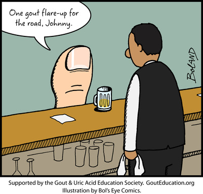 While gout arthritis can affect a number of joints, it most commonly affects the big toe. Consumption of alcoholic beverages – particularly beer – has been linked to gout flares.