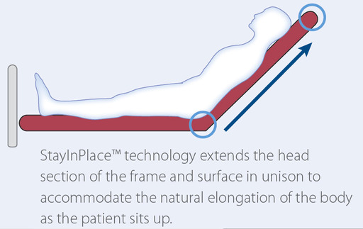 The Progressa bed system features a state-of-the-art design that supports treatment goals and was engineered to help address patient migration via its StayInPlace™ technology.