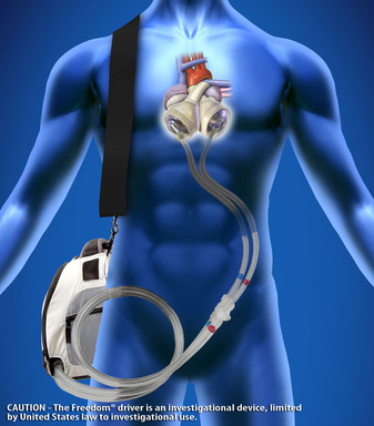 The Freedom® Portable driver is the world's first wearable power supply for the SynCardia temporary Total Artificial Heart.