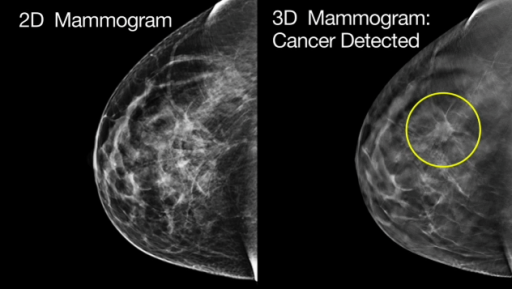 3D Mammography (Breast Tomosynthesis)