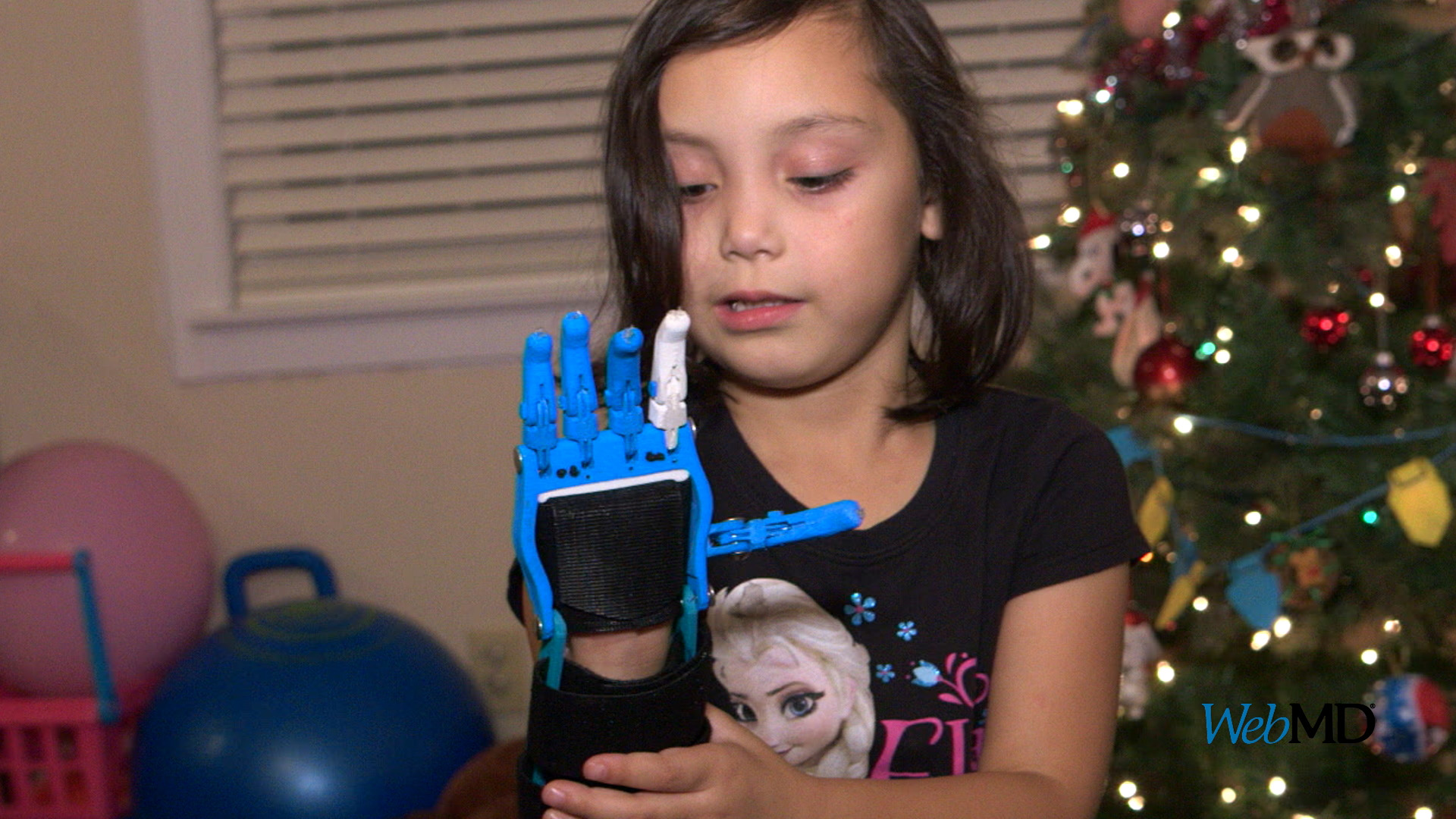 With 3-D Printing, Ariah receives prosthetic hand