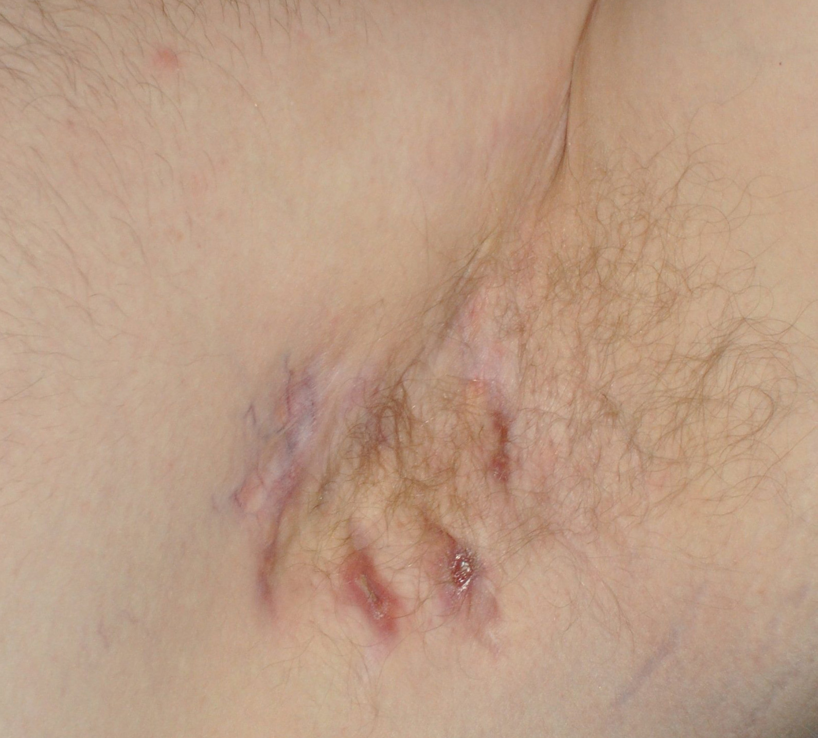 Moderate Case of Hidradenitis Suppurativa Located on the Armpit of a Male Patient
