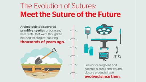 The Evolution of Sutures