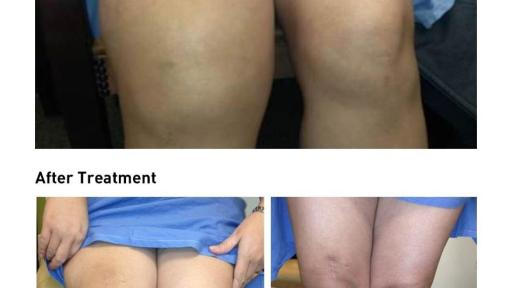 Photo of patient with TGCT affecting the knee