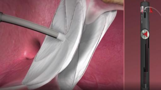 Play Video: Animation - GORE® CARDIOFORM ASD Occluder
