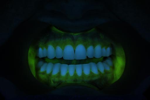 After Crest Oral B Pro-Health System