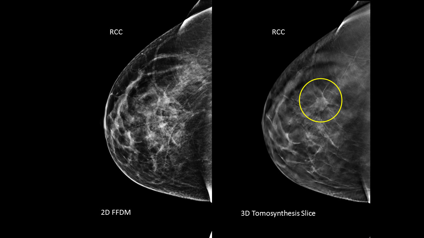 3d Mammography Significantly Increases The Detection Of Breast