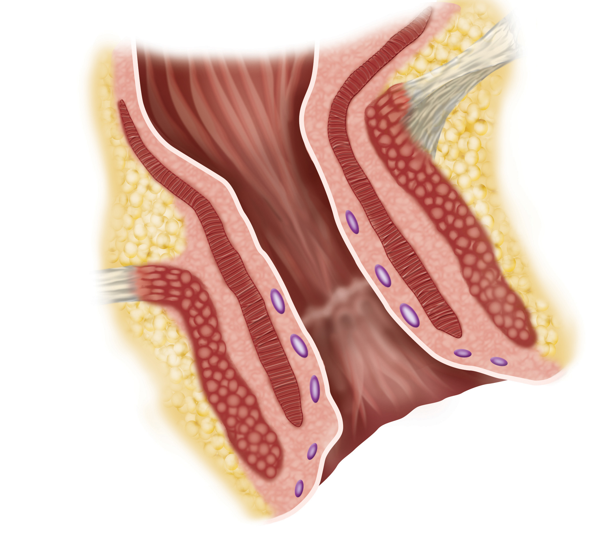 Fecal Incontinence is the inability to control bowel movements due to a damaged or weak anal sphincter muscle.