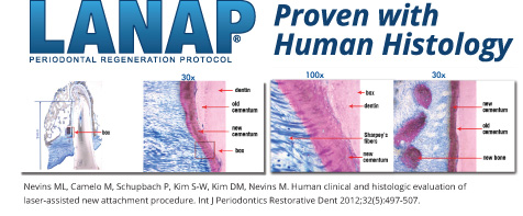 Illustrative graphic of the major steps in the LANAP/LAR protocol for periodontal True Regeneration.
