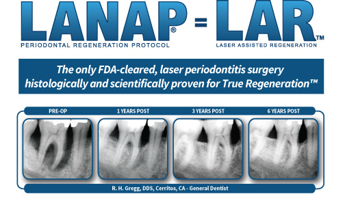 Thousands of clinicians and patients have benefited from the long-term, proven results provided by the LANAP protocol. These x-rays are a typical case of amazing periodontal healing.