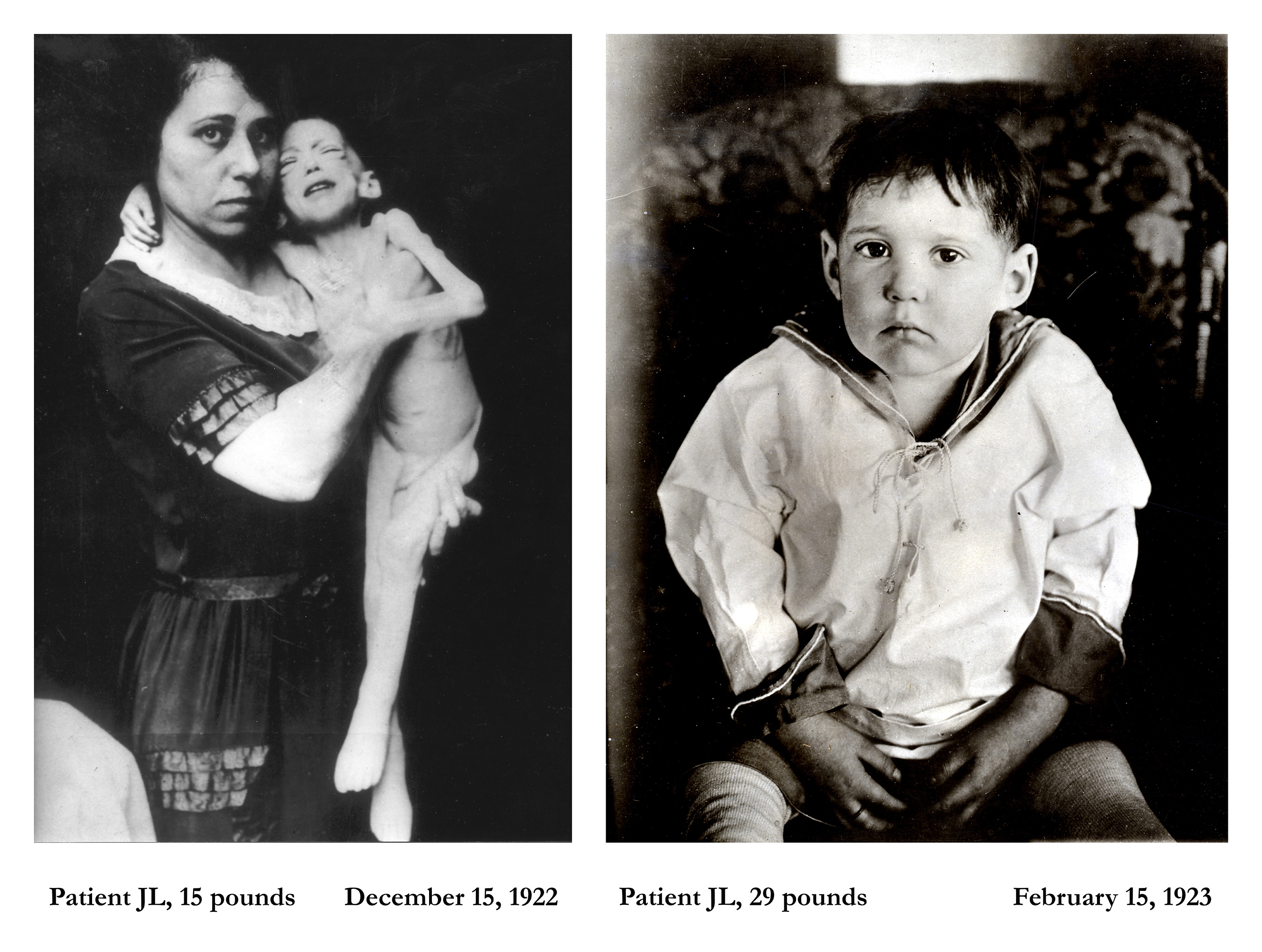 Less than 100 years ago, diabetes was a fatal disease with no treatment other than starvation. In 1923, Lilly collaborated with Canadian scientists Dr. Frederick Banting and Charles Best to overcome production challenges to introduce the world's first commercial insulin product. Featured in this photo is J.L., a child with diabetes before, then two months after, taking insulin.