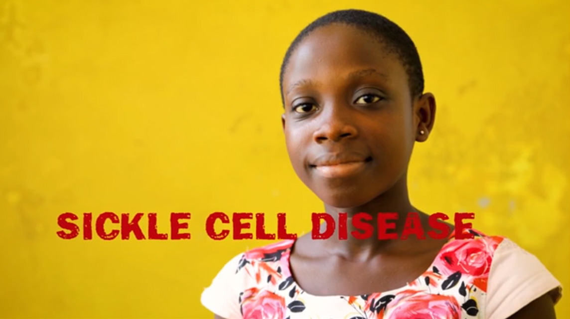Sickle Cell PSA