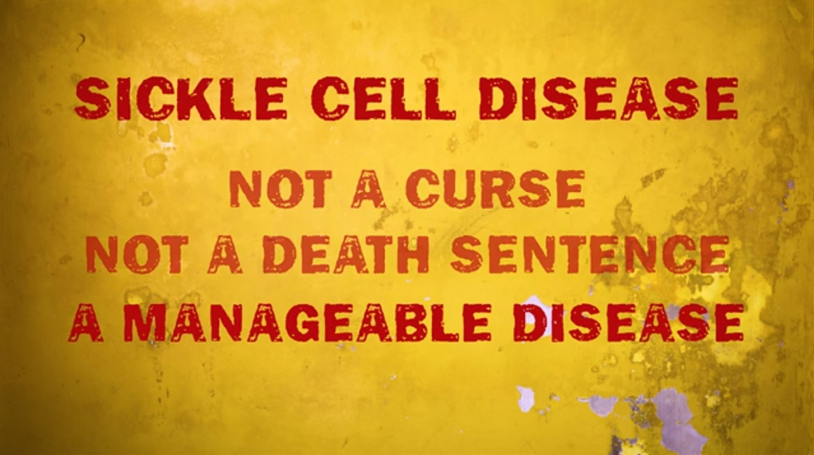 The State of Sickle Cell Disease