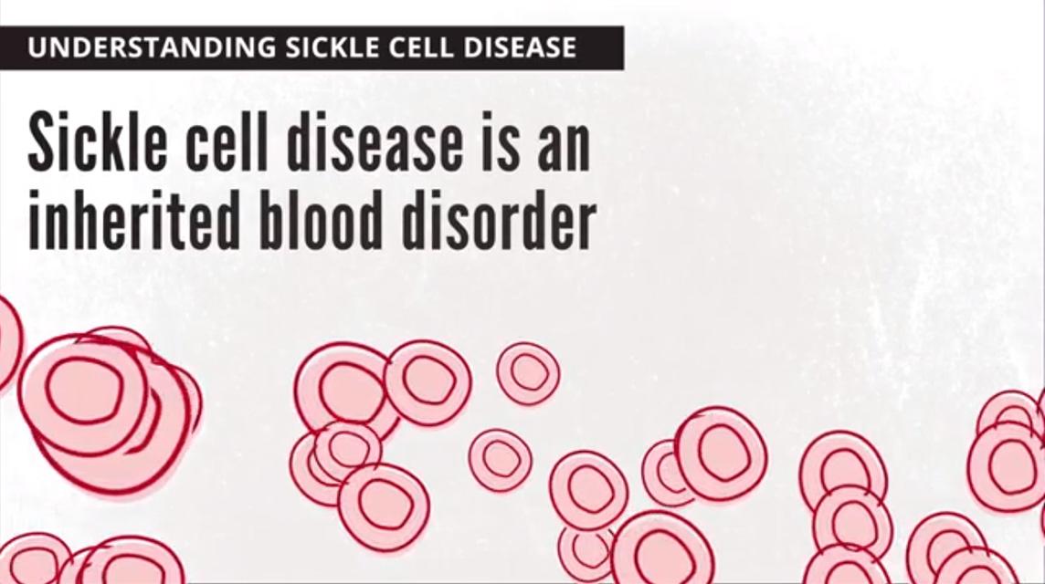Understanding Sickle Cell Disease