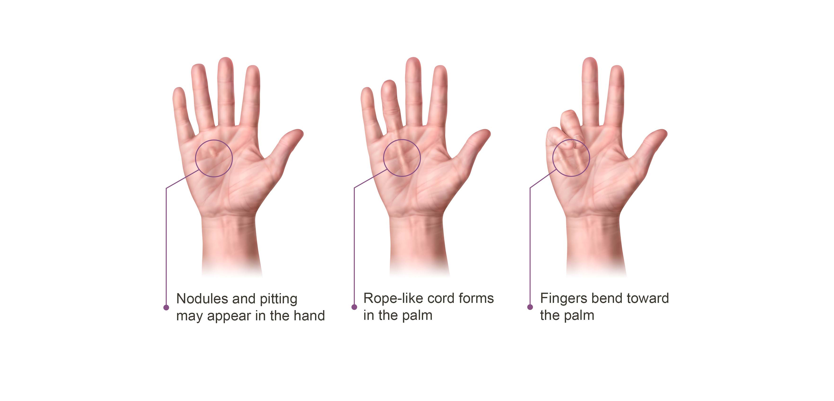 Dupuytren's Contracture Progression