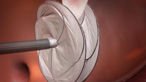 Video animation of the GORE CARDIOFORM Septal Occluder