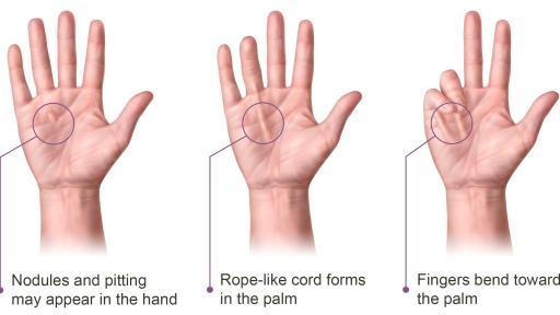 Infographic with three hands showing the progression of Dupuytren's Contracture.